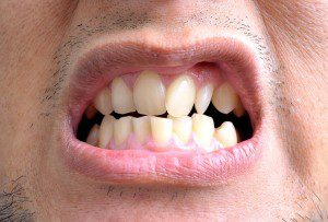 Why Crooked Teeth Are A Real Problem